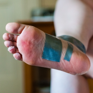 Steph says blisters be damned, ain't nothing a little Compeed, duct tape and ibuprofen can't fix.